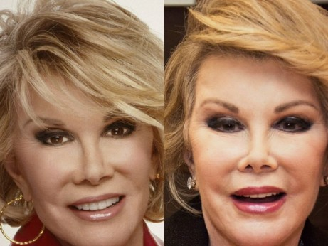 Joan Rivers Plastic Surgery Before And After Before